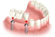 Εμφυτεύματα | implantsforall.gr/el/ / Εμφυτεύματα από την Implants For All. Μάθετε περισσότερα στο http://implantsforall.gr/el/
