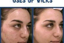 Uses for Vicks