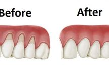 Teeth problem and how to solve it