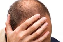 Hair Loss / Information about Hair Loss, Treatment Options and Preventive Tips