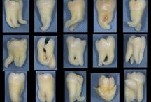 Wisdom teeth- Important Facts.