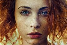 Freckles | Pecas