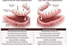 Dentures / All about Dentures....