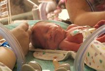 premature babies 33 - 37  weeks / tiny baby premature babies 22 - 24  weeks see how small these babies born early are when first born