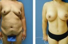 Mommy Makeover Before and Afters / A mommy makeover is a composite of procedures including post-maternity breast and body contouring,meant to treat a number of concerns. / by Dr.J Plastic Surgery