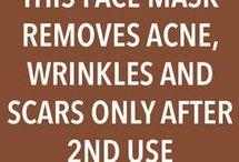 acne n skin