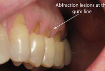 Dişle ilgili