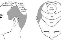 Hair Transplant / You can find here tips for hair transplant and hair surgeon tips. Etc