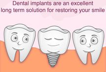 Cost of dental implants in india / Cosmodent Dental Clinic offers all types of Dental Implants to you in Delhi NCR, India.Very affordable dental implants cost in India.