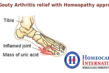Homeopathy Treatment For Gouty Arthritis