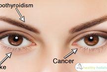 Health - Diseases | Eyes