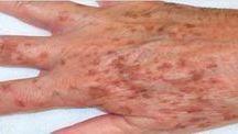 manchas pele