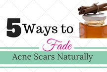 Natural Remedies for Acne & Scarring / Acne Treatment Tips Using Natural Remedies