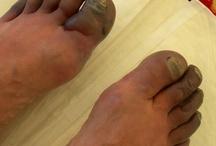 voetproblemen