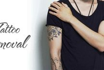 Best Laser Tattoo Removal in South Delhi