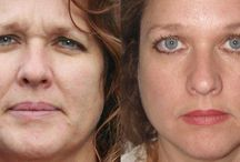 Facelift Workouts: Get Back Your Looks With Facial Training Workouts