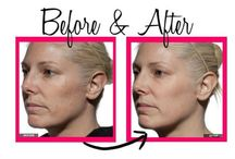 TRIA Age-Defying Laser    before & after