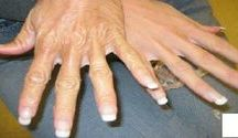Esfoliante mãos