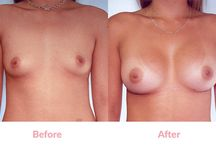Round Silicone Breast Implants (before & after) / All the photographs below are actual patients of Dr George Mayson, Principal Cosmetic Surgeon at Breast Excellence Australia. The photographs have not been enhanced or altered in any way. #BreastAugmentation, using different implants and different techniques as described under each photograph, is the only change which has occurred. #breastimplants