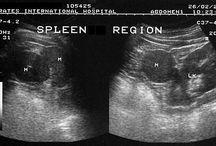 splenosis or accessory spleen ultrasound