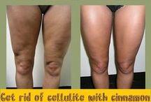 Tratamento caseiro celulite
