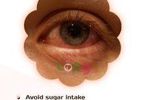 glaucoma remedies