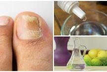 micosis uñas
