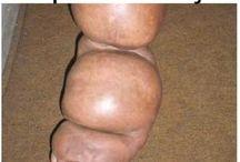 penyebab penyakit kaki gajah dan pengobatannya