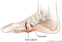 Charcot Foot Information