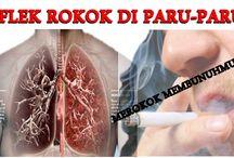 Obat Pembersih Flek Paru-paru Akibat Asap Rokok