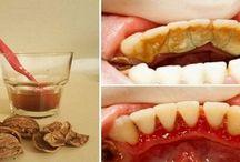 clareamento dente