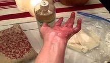 Aceite de ricino para ciatica y artritis