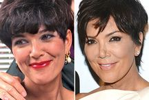 Kris Jenner Before and After / Kris Jenner before and after plastic surgery photos