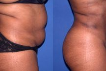 Ultrasonic Cavitation / Non Surgical Liposuction