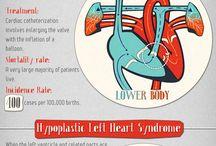 Heart Failure Infographics