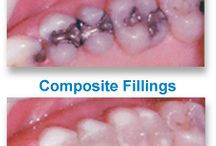 Family & Cosmetic Dentistry Irmo SC / Irmo Smiles, in Irmo SC 29063, is pleased to offer a full range of cosmetic dentistry services including: dental veneers, white dental fillings, ZOOM teeth whitening and dental crowns. Contact us today to book your smile makeover! http://ramanortho.com/cosmetic_dentistry_irmo_sc.html