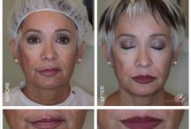 Permanent Makeup Correction By MicroArt / MicroArt Semi Permanent Makeup is used to corrects traditional permanent makeup side effects.
