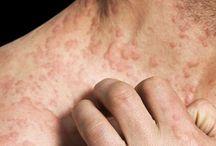Skin Cancer / All about skin cancer, skin cancer symptoms, skin cancer causes, skin cancer treatments