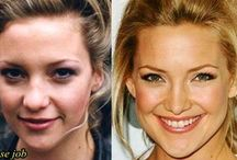Plasticsurgeryshock.com / All about celebrity plastic surgery news, rumors, before and after pictures