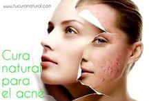 Cómo eliminar el acné con curas naturales