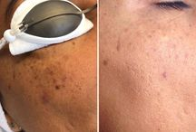 Skin Rejuvenation / Pigmentation with PicoSure Laser / We use the PicoSure laser to treat pigmentation, freckles, sun spots and age spots.