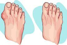 Избавление от шишки на ноге