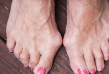 7 Ways to Ease Your Bunions Without Surgery
