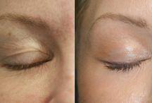 Cilt güzelliği için uygulamalar / BU panoda cildimizi daha güzelleştirmek için kliniklerde yaptırabileceğimiz işlemler hakkında bilmemiz gerekenleri paylaşıyoruz.