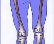 Limb Length Discrepancy Information