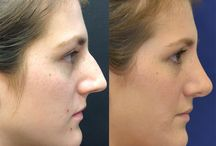 Before & After Pictures / A collection of awesome before & after pictures of plastic surgery and cosmetic treatments.