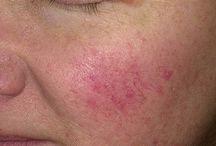Rosacea: Time to Face-off / These are things I pinned about Rosacea. Then I started using Younique's skincare products and no longer have to worry. https://www.youniqueproducts.com/Mindelei/