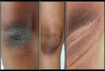 clarear a pele