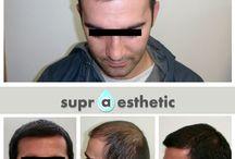 Hair Transplant / Hair transplant