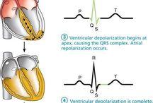 heart arytmia